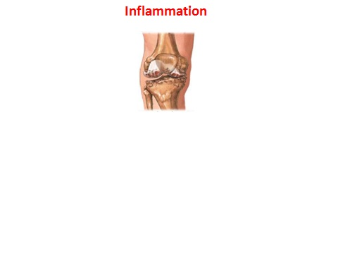 HTSNE on Inflammation